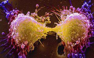 Ученые нашли новую мутагенную разновидность рака