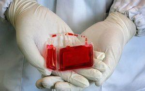 Пуповинная кровь поможет в лечении сепсиса