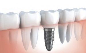 Какие бывают зубные пломбы, или Нет зубов — нет проблем!