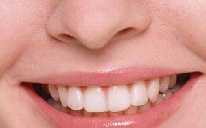Отбеливание зубов с помощью 100-процентного натурального средства