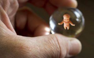 70% россиян выступают против вывода абортов из системы ОМС, 72% – против их запрета