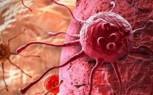 Рак головного мозга можно вылечить, отказавшись от холестерина