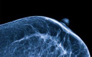 Микробиом молочной железы может быть виновен в возникновении рака