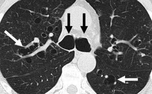 Метастазы в лёгких – причины, симптомы и лечение