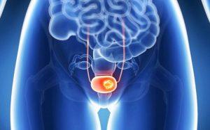 Дефицит витамина D повышает риск рака мочевого пузыря