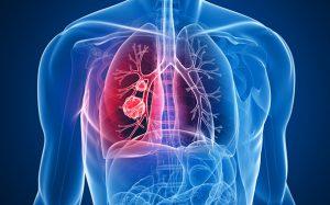 Специалисты научились диагностировать рак легких у некурящих мужчин и женщин