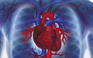 Инфаркт миокарда: как предупредить?