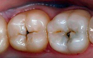 В чем опасность пульпита: рекомендации стоматологов