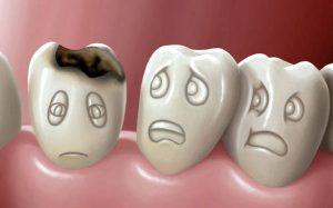 Эксперты научили зубы самостоятельно удалять последствия кариеса