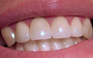 Какие продукты помогут сохранить натуральную белизну зубов?