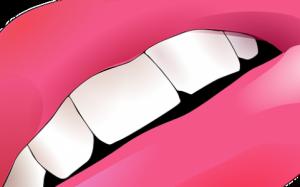 Металлокерамические протезы зубов