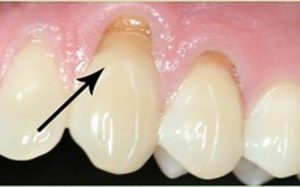 Зубной камень – болезнь или дефект?