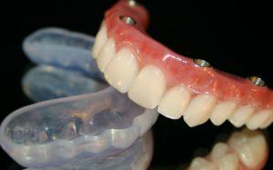 Имплантация зубов по технологии all-on-4 убережёт человека от траты лишнего времени и средств