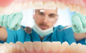 Налет на зубах: косметический недостаток или угроза здоровью?