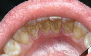 Здоровые зубы — гарантия долгой жизни, показало исследование