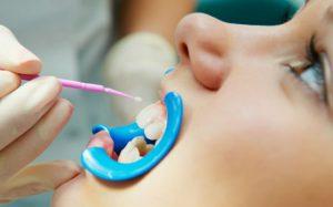 Фторирование зубов — показания и противопоказания к процедуре