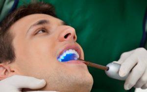 С помощью ультразвукового скалера можно быстро избавиться от зубного камня