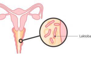 Бактериальный вагиноз — симптомы и лечение