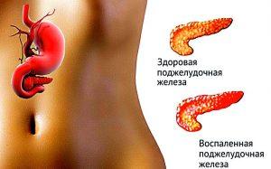 Заболевание поджелудочной железы — панкреатит, причины и симптомы заболевания