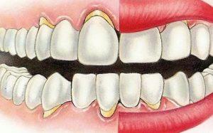 Народное лечение пародонтоза зубов и десен