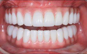 Как выбрать форму зубов при протезировании