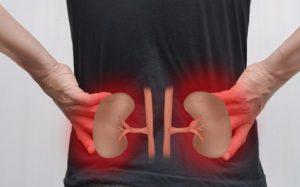 Причины, которые могут вызвать мочекаменную болезнь