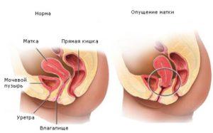 Что каждая женщина должна знать об опущении матки