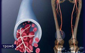 Тромбофлебит глубоких вен симптомы и лечение | как лечить тромбофлебит