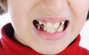 Из-за чего портятся зубы?