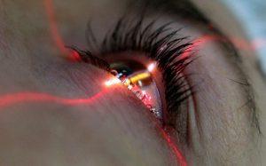 Показания к операции по лазерной коррекции зрения — виды