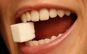 Как исправить прикус, или Хотите ровную улыбку?