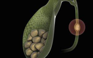 Первые признаки острого холецистита — неотложная помощь, диагностика, консервативное и оперативное лечение