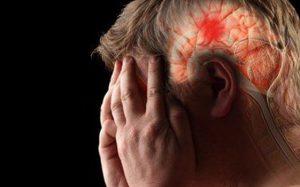 Как предотвратить инсульт головного мозга у мужчин и женщин — профилактические меры и лекарственные средства