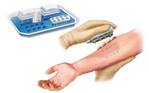 Аллергические пробАллергические пробыы