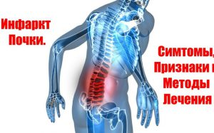 Инфаркт почки: что это такое, симптомы и лечение