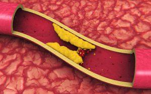 Атеросклероз: причины, симптомы, лечение