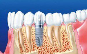 Что нужно знать о протезировании и о специфике имплантации зубов