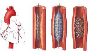 Процедура стентирования сосудов сердца: показания, особенности проведения, реабилитационный период