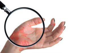 Рожистое воспаление кожи, причины, лечение, осложнения, профилактика