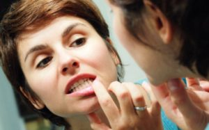 Возможно ли лечение кровоточивости десен в домашних условиях?