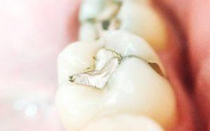Что такое амальгама в стоматологии?