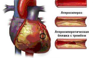 Стоимость операции и лечения ишемической болезни сердца