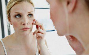 Что делать, если обветрилась кожа лица