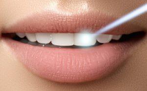 Лазер или бормашина: как продвинутые пациенты лечат зубы