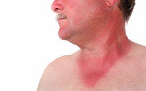 Геморрагическая лихорадка, инкубационный период