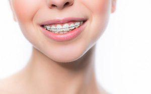 Диета при ношении брекетов: советы стоматологов
