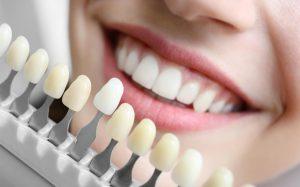 Съемные виниры на зубы: плюсы и минусы