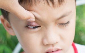 Народные средства от ячменя. Действительно ли эффективен плевок в глаз?