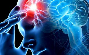Как избежать внезапного инсульта