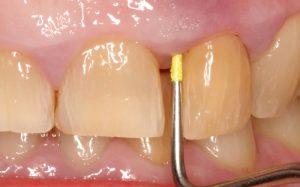 Профессиональная стоматология: особенности современной клиники